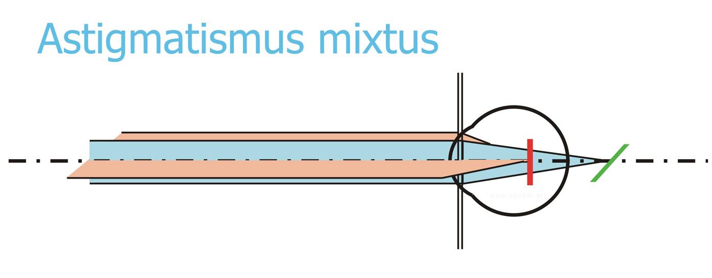 Astigmatismus - Hornhautverkrümmung