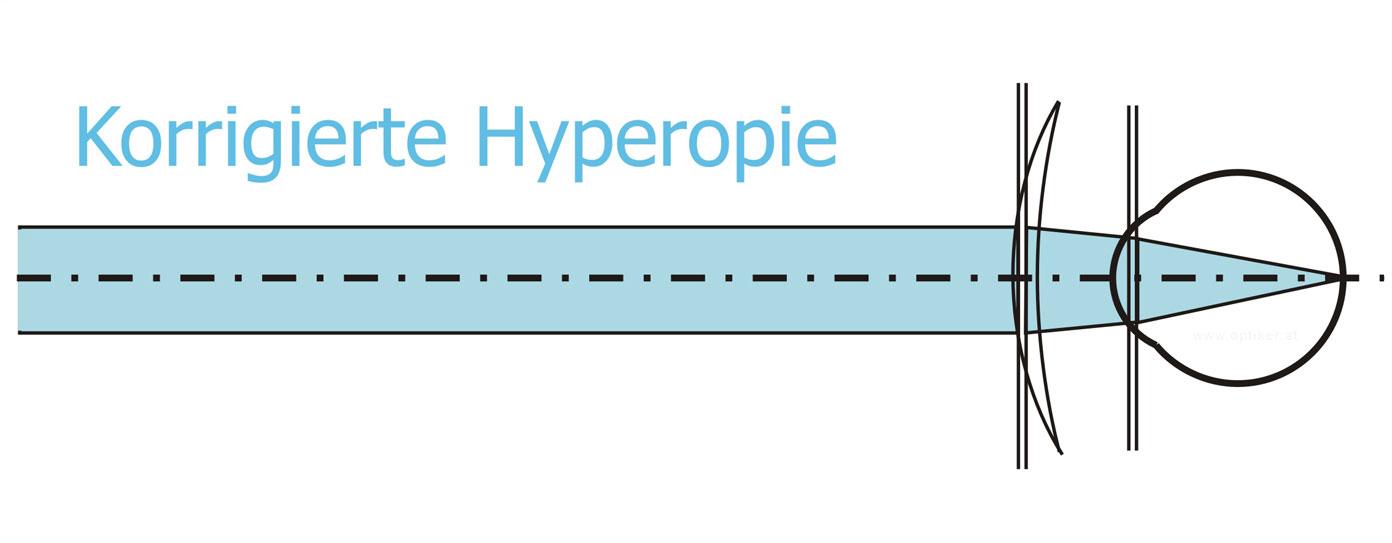 Korrigierte Hyperopie - Übersichtigkeit - Weitsichtigkeit