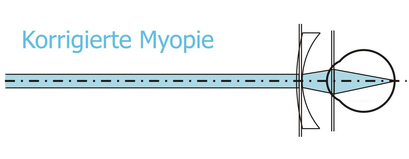 Korrigierte Myopie - Kurzsichtigkeit