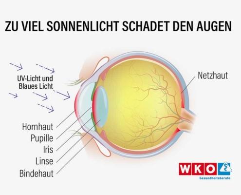Niemals oben ohne in die Sonne: So reagieren Augen auf UV-Strahlen